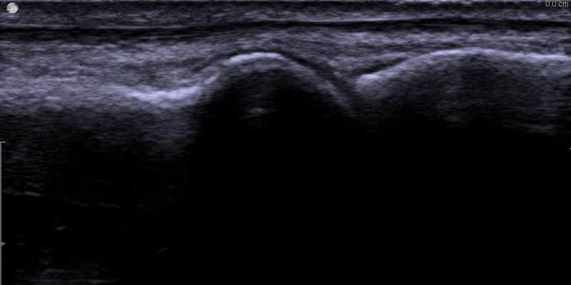 Ultraljudsbild av frisk mtp1-led (stortå led)
